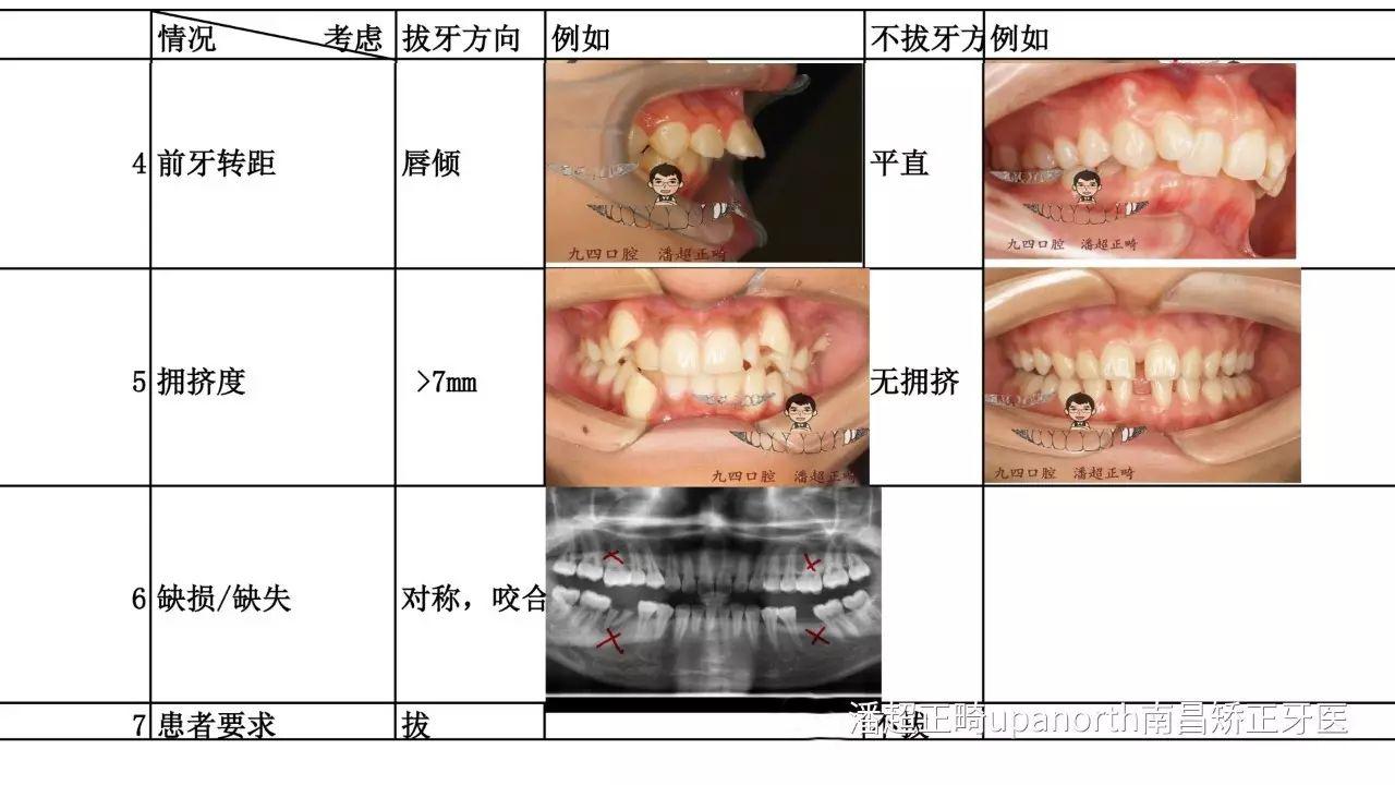 20岁骨性地包天,磨牙反牙合,高角,拔牙矫正